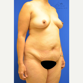 45-54 year old woman treated with Mommy Makeover before 3421605