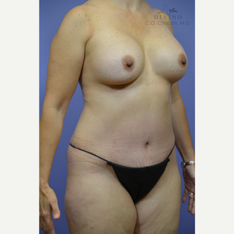 45-54 year old woman treated with Mommy Makeover after 3421605