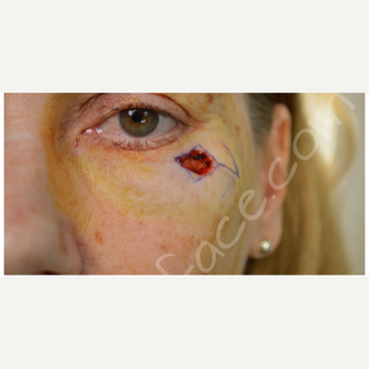 35-44 year old woman treated with Facial Reconstructive Surgery before 3505865