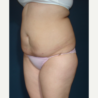 25-34 year old woman treated with Tummy Tuck before 3288137