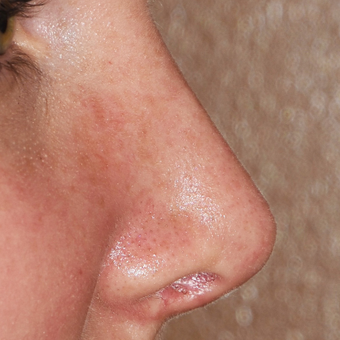 18-24 year old woman treated with Rhinoplasty after 3223727