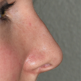 18-24 year old woman treated with Rhinoplasty before 3223727