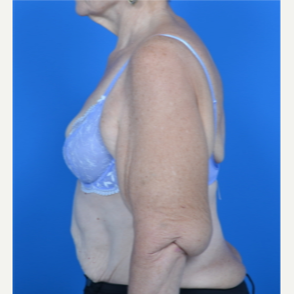67 year old woman treated with Arm Lift before 3327814