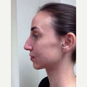 25-34 year old woman treated with Rhinoplasty before 3122809