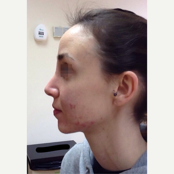 25-34 year old woman treated with Rhinoplasty after 3122809