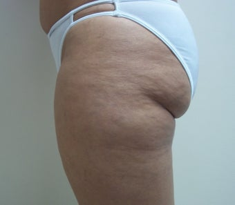 50 Year Old Female for Liposuction of Thighs and Hips