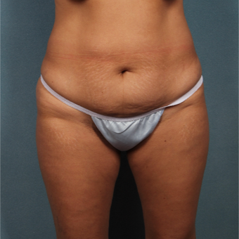 35-44 year old woman treated with Tummy Tuck before 3325822