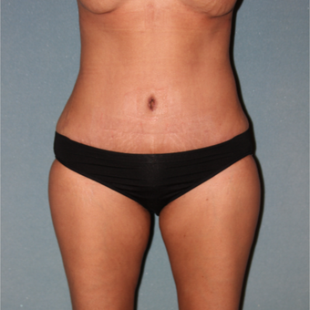 35-44 year old woman treated with Tummy Tuck after 3325822