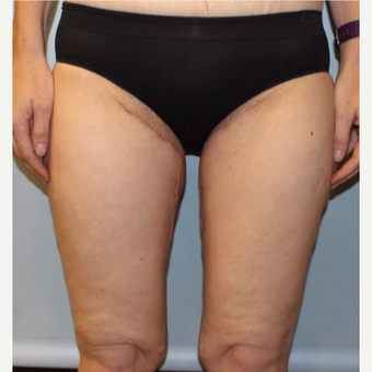 45-54 year old woman treated with Thigh Lift after 3321812