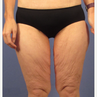45-54 year old woman treated with Thigh Lift before 3321812