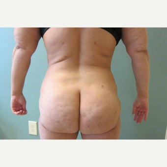 35-44 year old woman treated with Laser Liposuction after 2618700