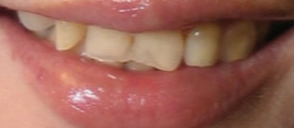 Porcelain Veneers/Smile Makeover