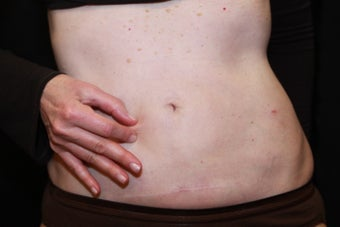 Laser Liposuction - Abdomen after 1058349