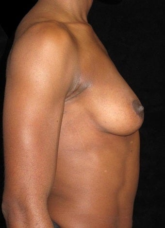 32 year old woman with asymmetry treated with Breast Augmentation 3104727