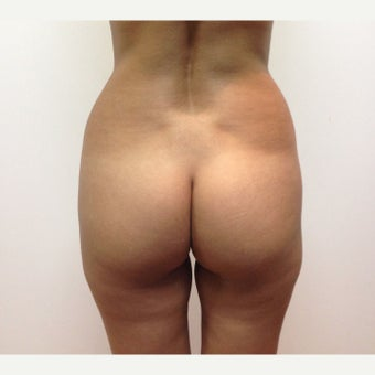 25-34 year old woman treated with Brazilian Butt Lift before 1965984
