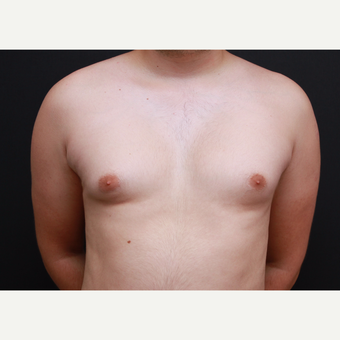 35-44 year old man treated with Male Breast Reduction before 3269973