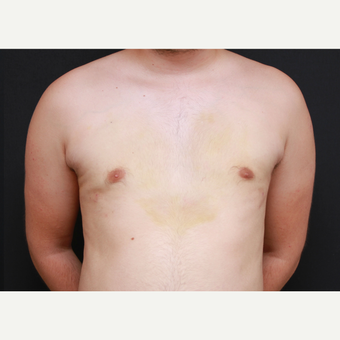 35-44 year old man treated with Male Breast Reduction after 3269973