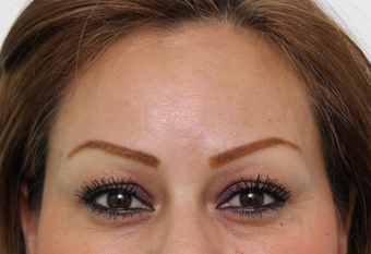 Forehead Botox after 3722906