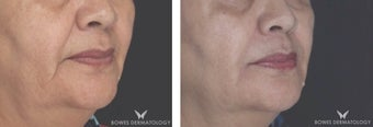 Juvederm Ultra Plus to reduce Marionette lines in patient