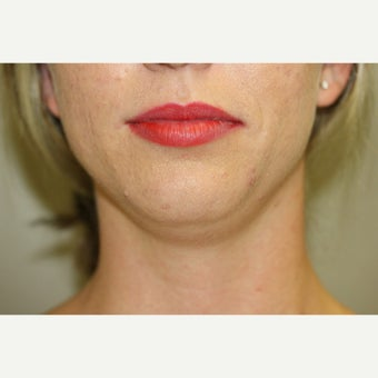 25-34 year old woman treated with Kybella before 2596937