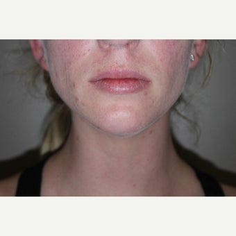 25-34 year old woman treated with Kybella after 2596937