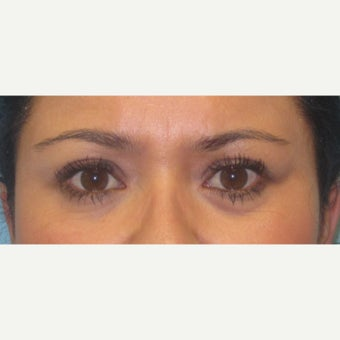 25-34 year old woman treated with right upper lid ptosis surgery after 2438542