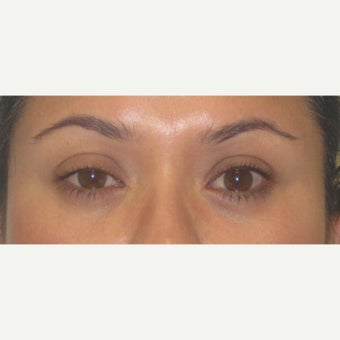 25-34 year old woman treated with right upper lid ptosis surgery before 2438542