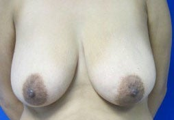 Breast Lift before 3055092