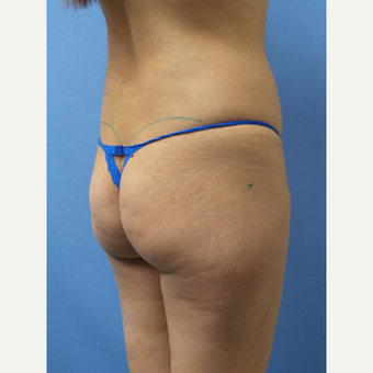 18-24 year old woman treated with Butt Implants before 3378394