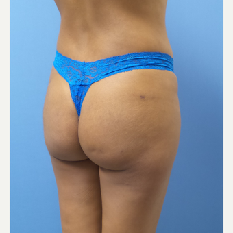 18-24 year old woman treated with Butt Implants after 3378394