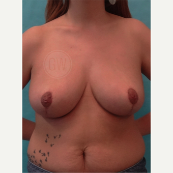 35-44 year old woman treated with Breast Reduction after 2071940