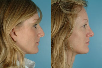 revision rhinoplasty before 302611