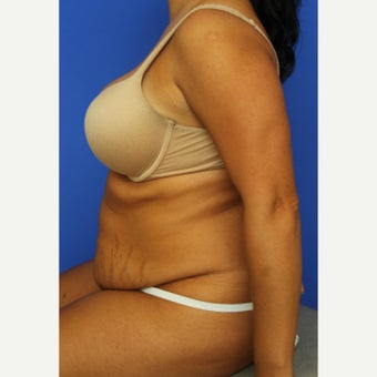 25-34 year old woman treated with Tummy Tuck 1609691