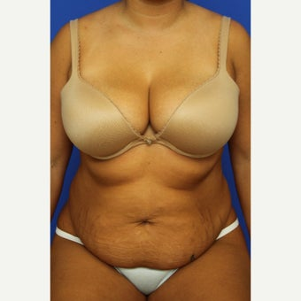 25-34 year old woman treated with Tummy Tuck before 1609691