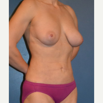 25-34 year old woman treated with Breast Fat Transfer after 3408279