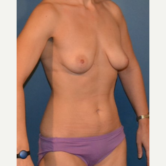 25-34 year old woman treated with Breast Fat Transfer before 3408279