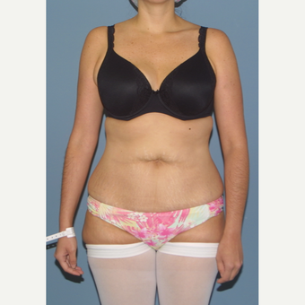 35-44 year old woman treated with Tummy Tuck before 3501400