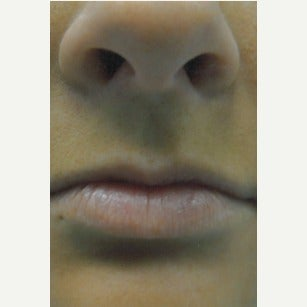 25-34 year old woman treated with Lip Implants before 1910820