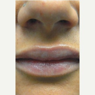25-34 year old woman treated with Lip Implants after 1910820