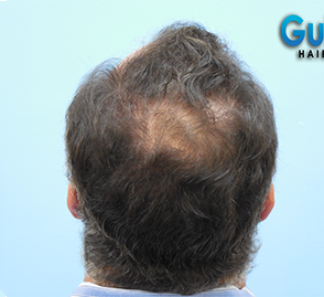55-64 year old man treated with Hair Transplant before 3032881