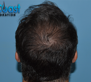 55-64 year old man treated with Hair Transplant after 3032881