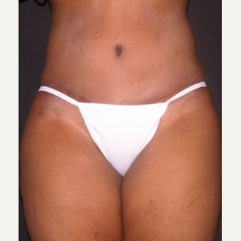 Tummy Tuck after 1688456