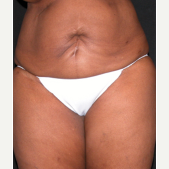 Tummy Tuck before 1688456