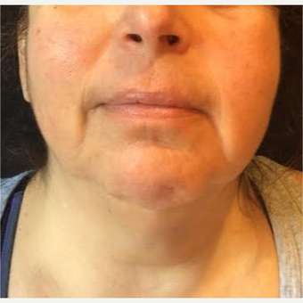 55-64 year old woman treated with Kybella after 2993136