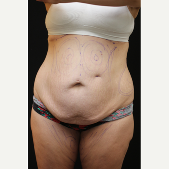 30 year old woman treated with Liposuction before 3089185