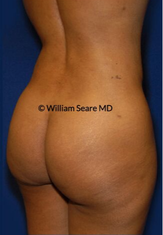 35-44 year old woman treated with Brazilian Butt Lift after 3765329