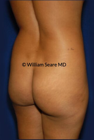 35-44 year old woman treated with Brazilian Butt Lift before 3765329