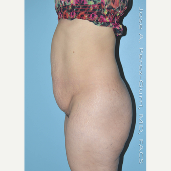 35-44 year old woman treated with Tummy Tuck before 3609897