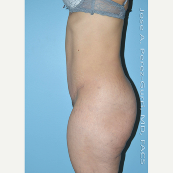 35-44 year old woman treated with Tummy Tuck after 3609897