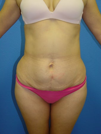 Tummy tuck before 1392259